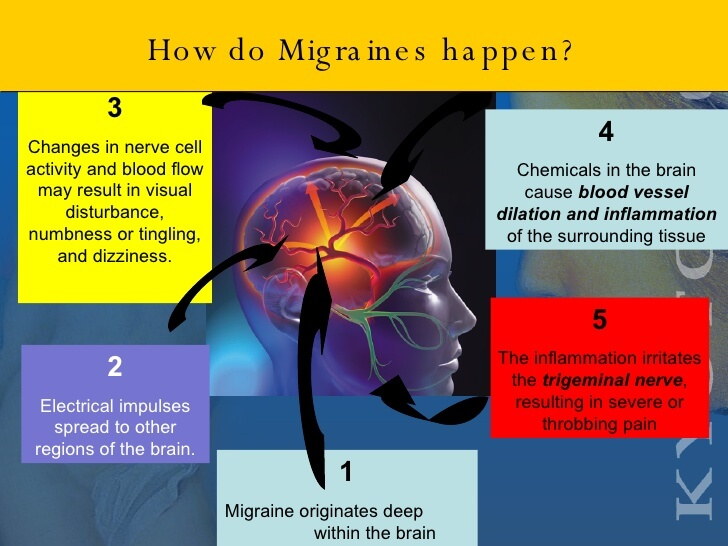 New Findings: Protein in Brain Causes Migraine, Can be ...